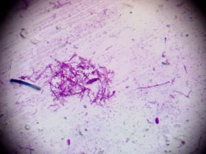 дерматофиты